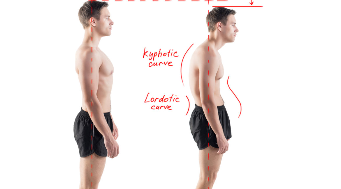 Straighten Up! How Poor Posture Negatively Affects the Health of Your Entire Body