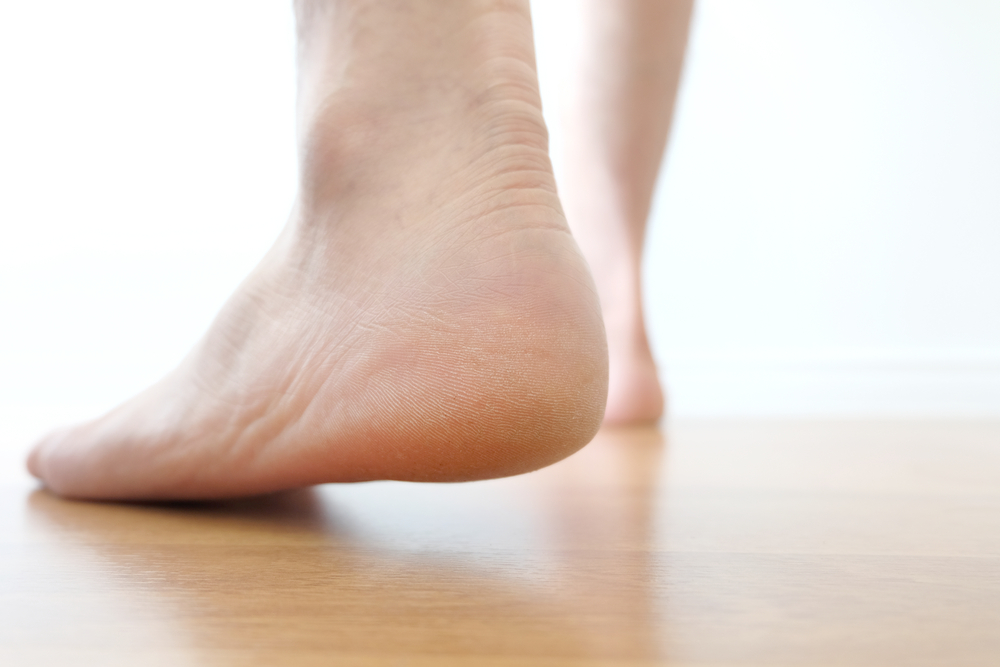 Should I See A Chiropractor For My Plantar Fasciitis?